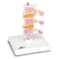 Model Osteoporosis