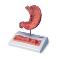 Model Maag met maagzweer