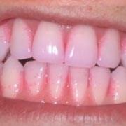 Tandplak verklikkers 100 st
